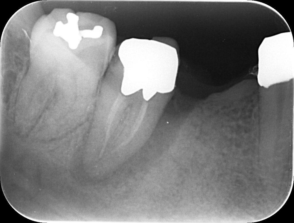 歯周 - 歯内病変の治療 山梨・あいざわ歯科クリニック