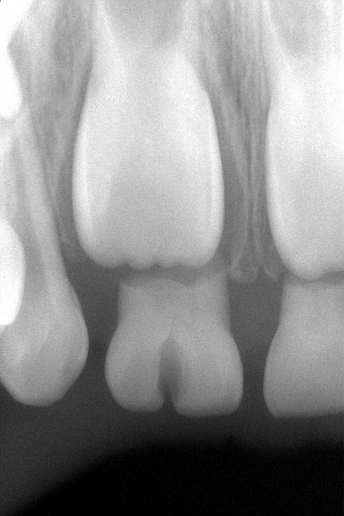 癒合歯 あいざわ歯科クリニック