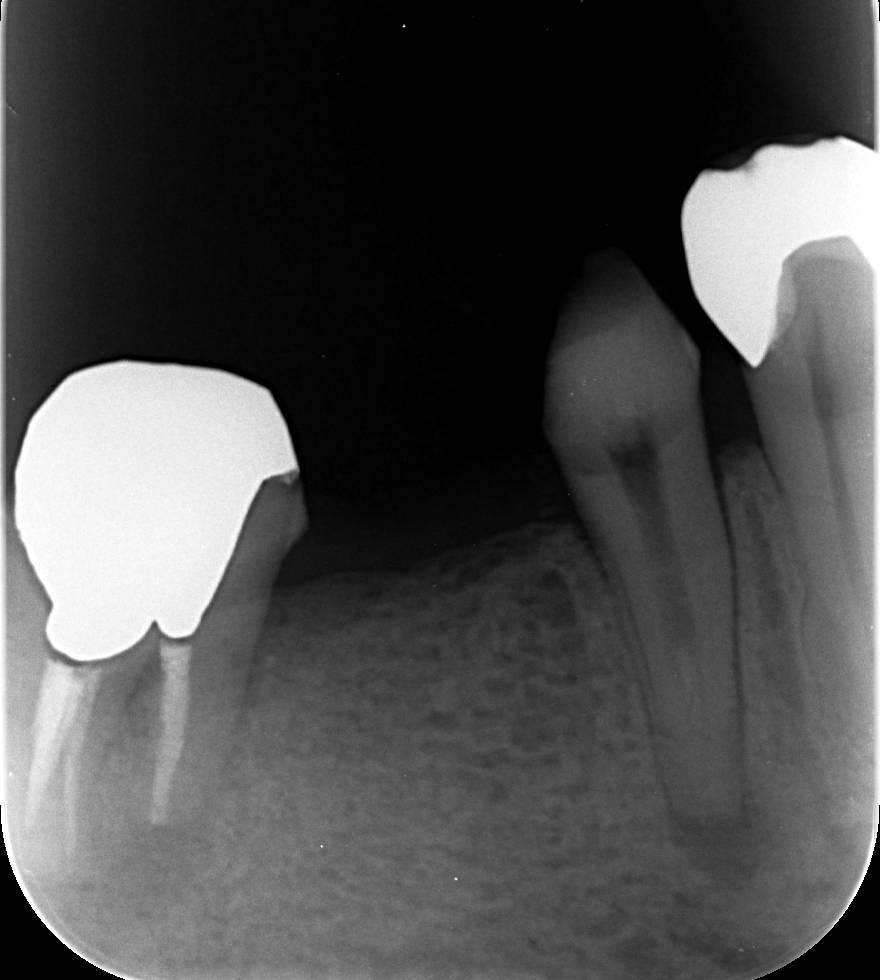 あいざわ歯科クリニック 根管治療 閉鎖根管