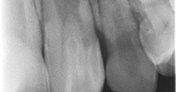 歯内歯 あいざわ歯科クリニック