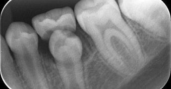 永久歯の萌出 あいざわ歯科クリニック