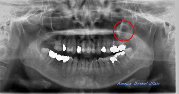上顎骨嚢胞 あいざわ歯科クリニック