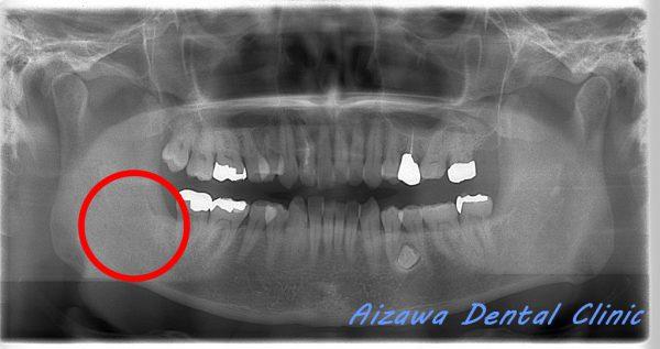 濾胞性歯嚢胞 あいざわ歯科クリニック 口腔外科