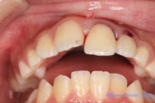 歯の脱臼・歯の外傷  あいざわ歯科クリニック