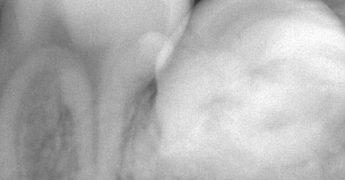 歯牙腫 あいざわ歯科クリニック
