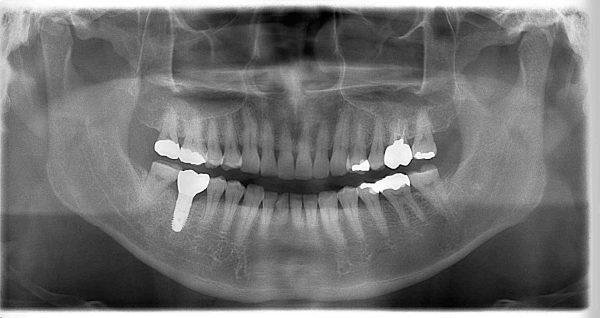 条件の良いインプラント あいざわ歯科クリニック