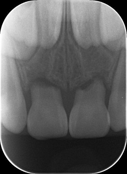 乳歯の外傷 あいざわ歯科クリニック