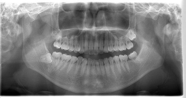 歯牙腫 摘出4年後 あいざわ歯科クリニック
