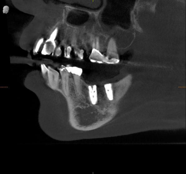 垂直的骨造成 インプラント後 あいざわ歯科クリニック