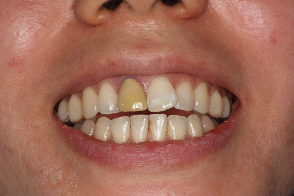 前歯部審美歯科 ジルコニア あいざわ歯科クリニック