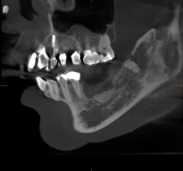 垂直的骨造成前 あいざわ歯科クリニック