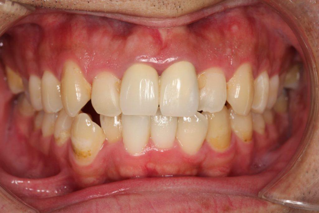 前歯部前装冠 保険診療 あいざわ歯科クリニック
