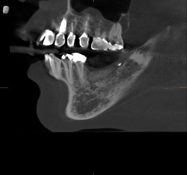 垂直的骨造成後 あいざわ歯科クリニック