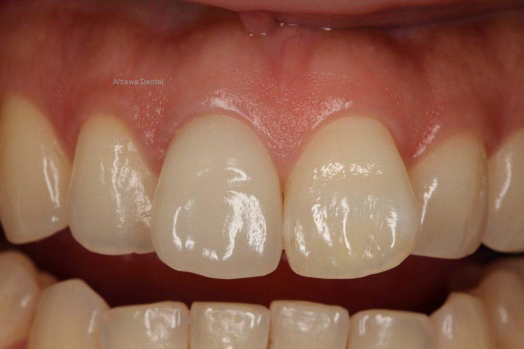 前歯部 ジルコニア補綴後 あいざわ歯科クリニック