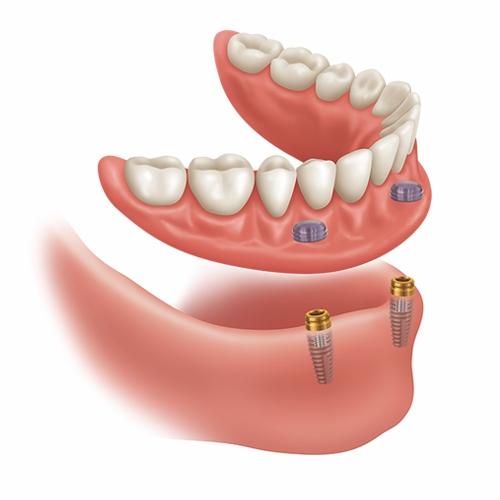 インプラント義歯 ロケーターアバットメント
