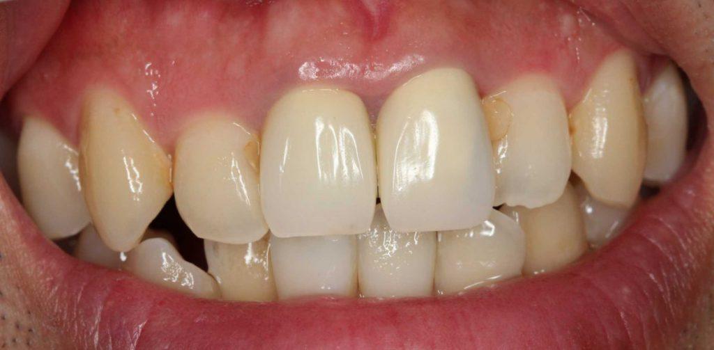 前歯部前装冠 装着後 保険診療 あいざわ歯科クリニック