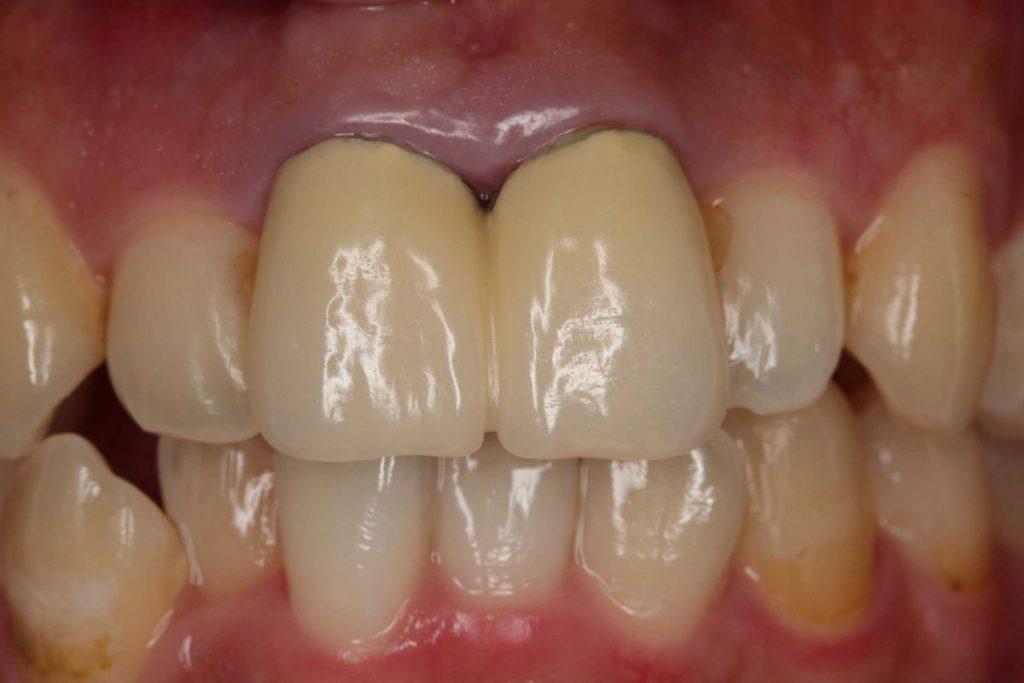 前歯部前装冠 除去前 保険診療 あいざわ歯科クリニック