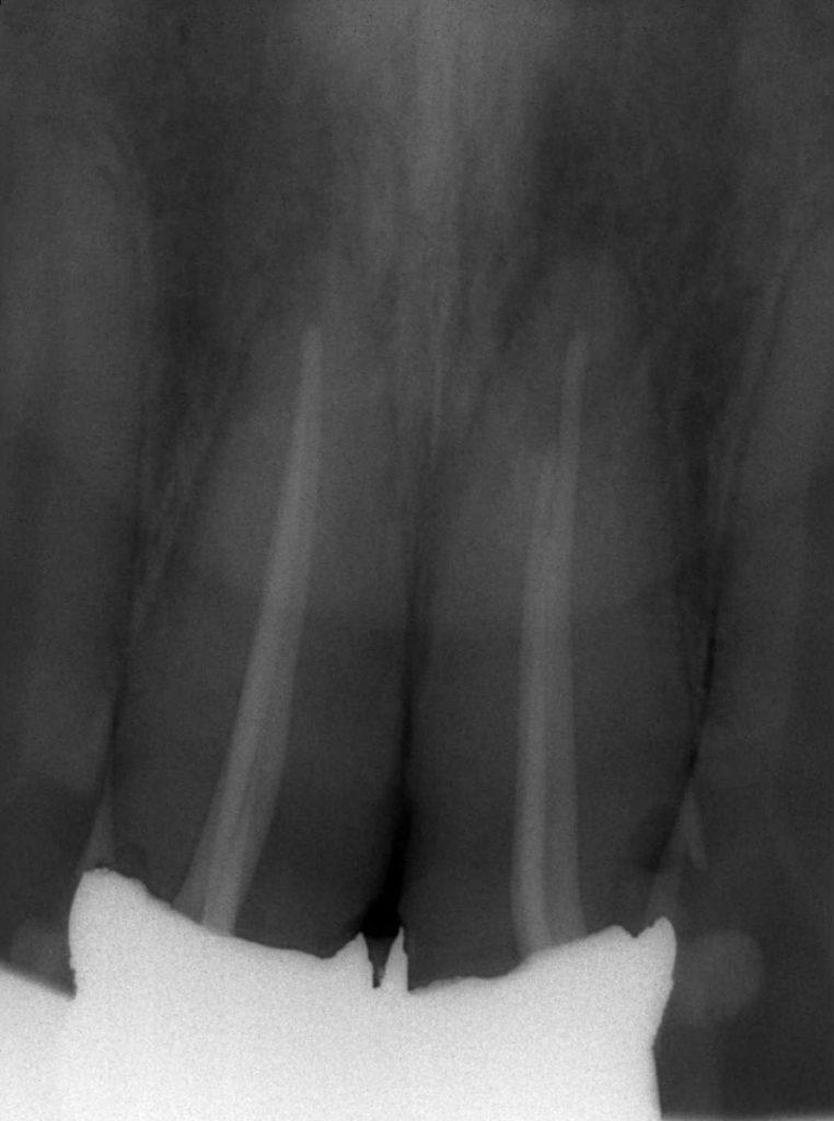 前歯部前装冠 保険診療
