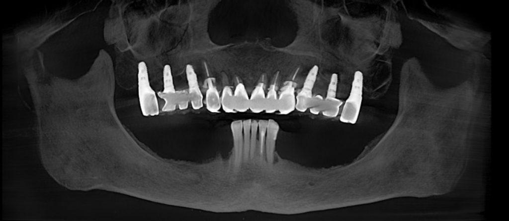 インプラント治療術前 あいざわ歯科クリニック