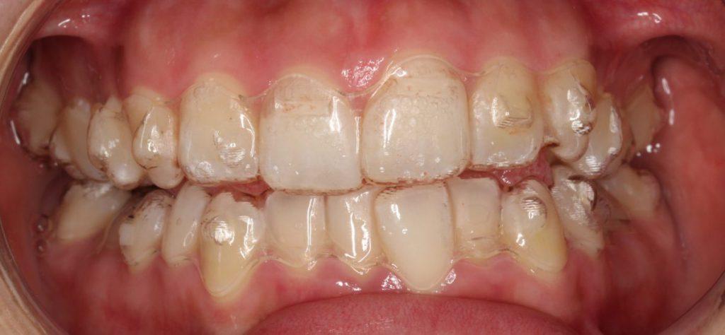 インビザライン アタッチメント装着後 あいざわ歯科クリニック